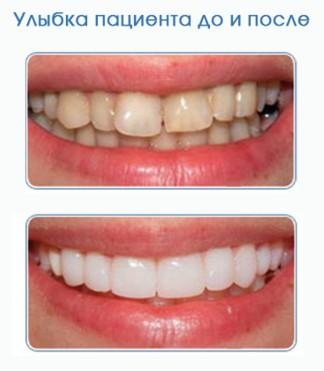 Виниры для зубов технология